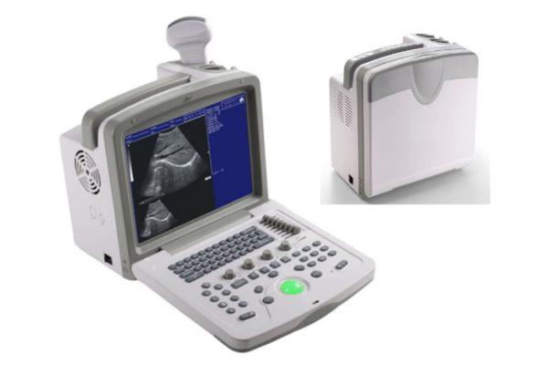 Ultrasound - Portable Digital Black and White Scanner